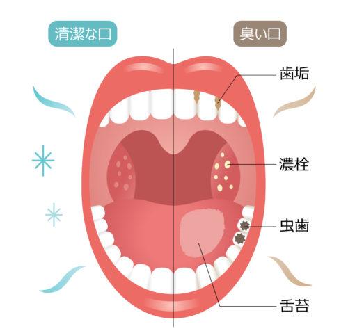 臭い玉 喉